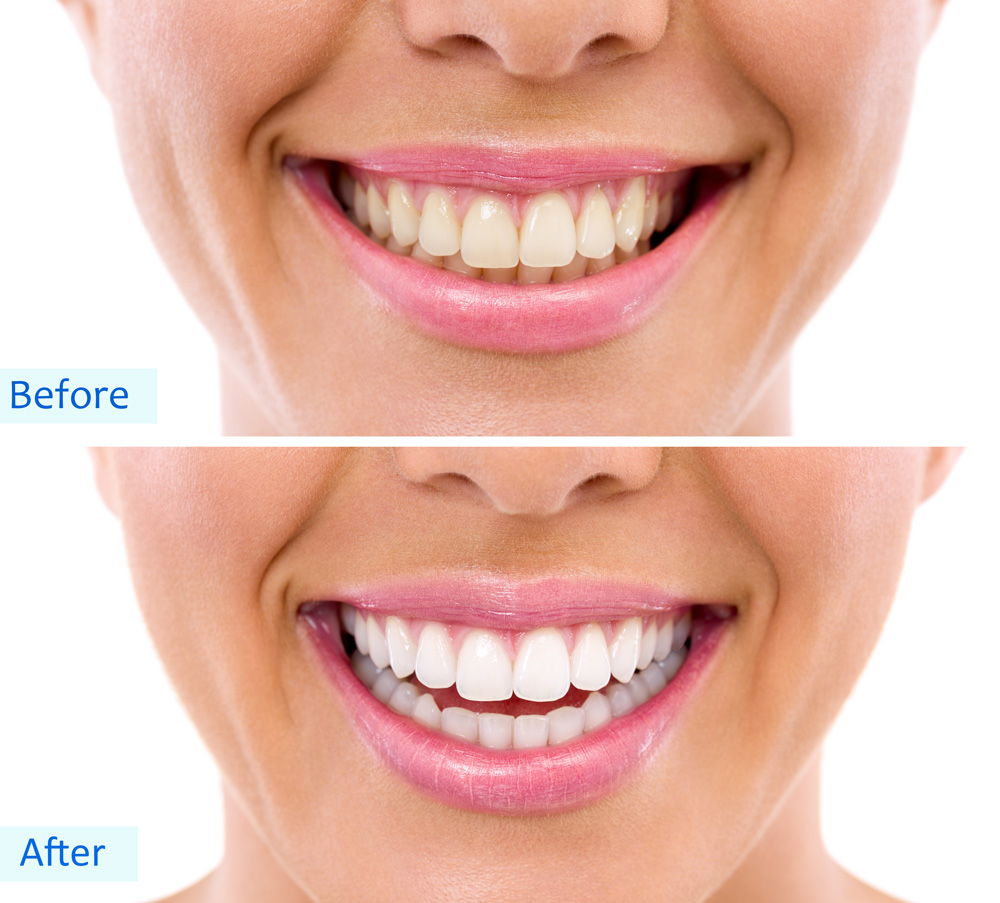 lady-with-two-white-teeth-sets